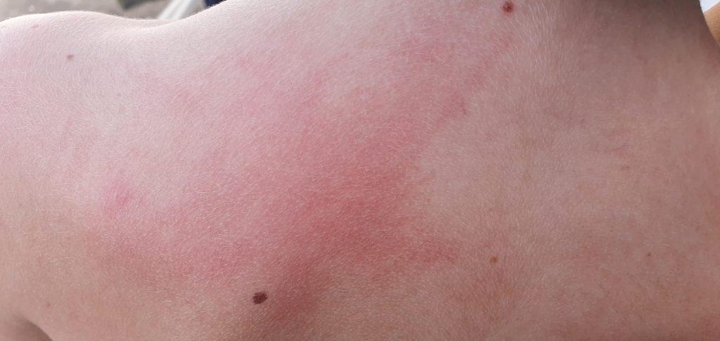 Lo Schiavo : perchè Ginostra è stata esclusa dalla disinfestazione da zanzare ? 1